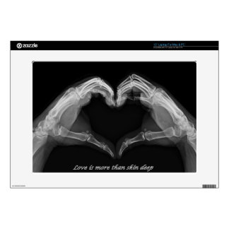 "15"" Laptop X-Ray Love Skin Decals For Laptops"