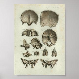 1844 Vintage Anatomy Print Skull Bones
