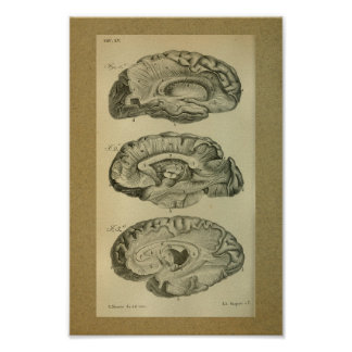 1850 Vintage Anatomy Print Brain Lobes