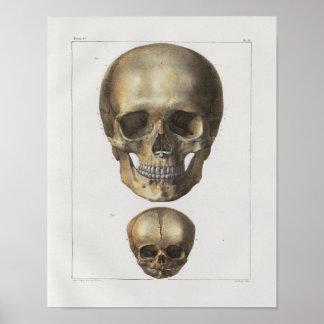 1867 Human Skull Vintage Anatomy Print