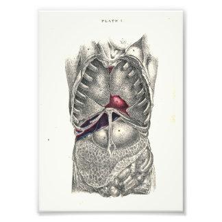 1895 Human Anatomy Print Abdomen Photo Art