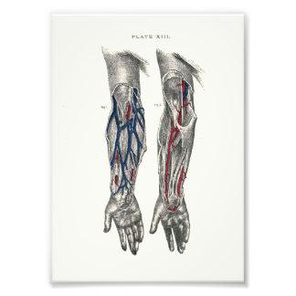 1895 Human Anatomy Print Arm Photo Print