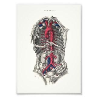 1895 Human Anatomy Print Arteries Photo Art