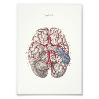 1895 Human Anatomy Print Brain Photo Art
