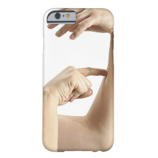 23554089 BARELY THERE iPhone 6 CASE