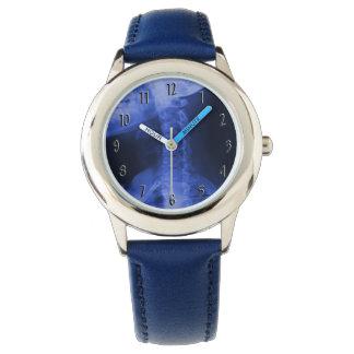 2 radiografiados - Azul electromágnetico Relojes