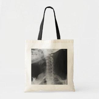 2 radiografiados bolsa tela barata