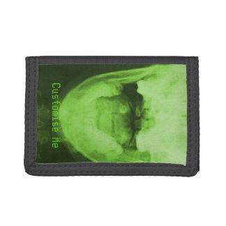 3 radiografiados - Verde radiactivo