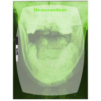 3 radiografiados - Verde radiactivo Pizarras Blancas