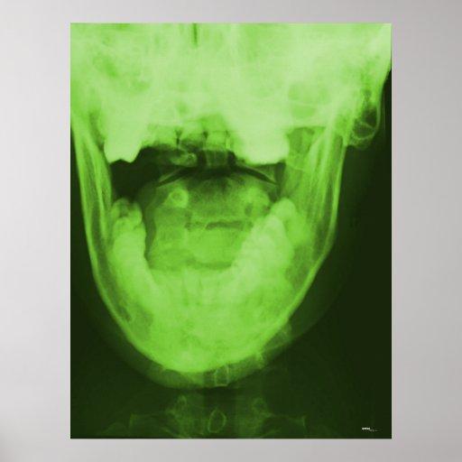 3 radiografiados - Verde radiactivo Póster