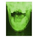 3 radiografiados - Verde radiactivo Tarjeta Postal