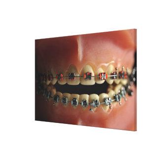 A dental model and Teeth braces Canvas Print
