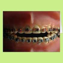 A dental model and Teeth braces Card