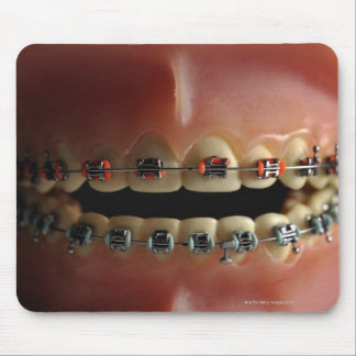 A dental model and Teeth braces Mouse Pad
