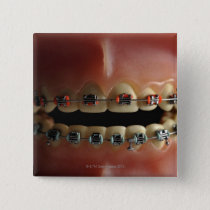 A dental model and Teeth braces Pinback Button