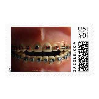 A dental model and Teeth braces Postage