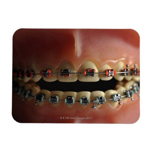 A dental model and Teeth braces Rectangular Photo Magnet