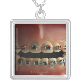 A dental model and Teeth braces Silver Plated Necklace