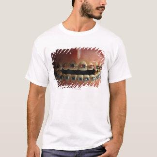A dental model and Teeth braces T-Shirt