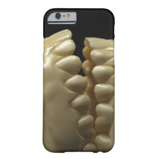 A dental model barely there iPhone 6 case