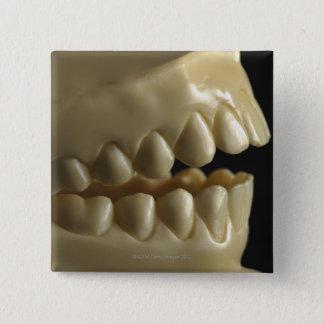 A dental model button