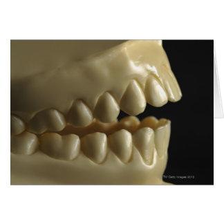 A dental model card