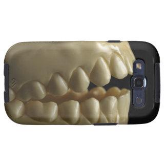 A dental model galaxy s3 cases