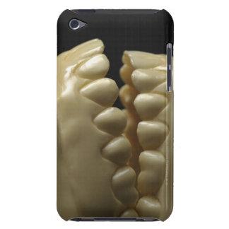 A dental model iPod Case-Mate case