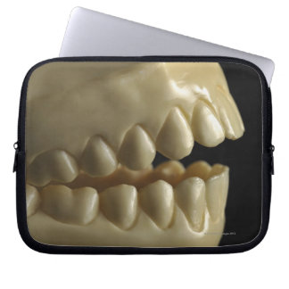 A dental model computer sleeve