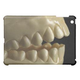 A dental model iPad mini cover