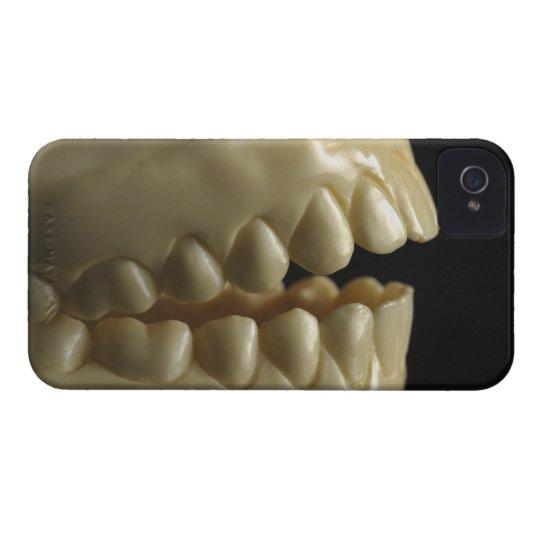 A dental model iPhone 4 case