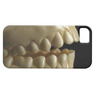 A dental model iPhone SE/5/5s case