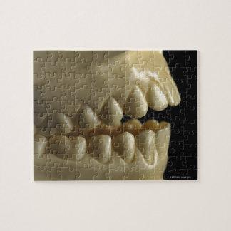 A dental model jigsaw puzzle