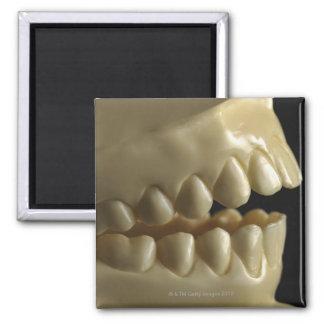 A dental model magnet