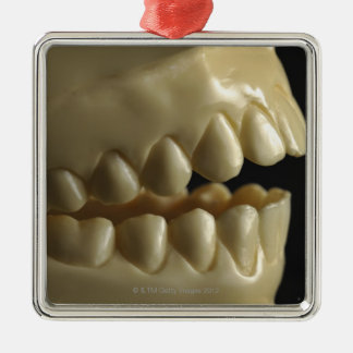 A dental model metal ornament
