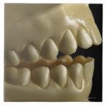 A dental model tile