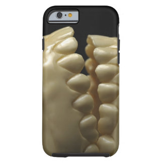 A dental model tough iPhone 6 case