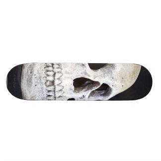 A Skull Skateboard