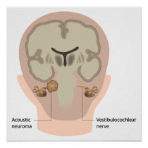 Acoustic neuroma Poster