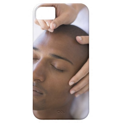 Acupuncture. Acupuncturist inserting a needle iPhone 5 Cover