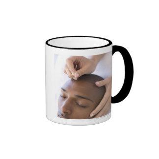 Acupuncture. Acupuncturist inserting a needle Coffee Mug