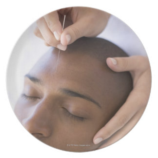 Acupuncture. Acupuncturist inserting a needle Party Plate