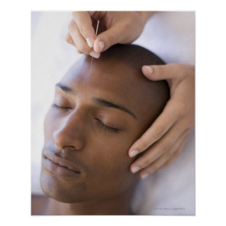 Acupuncture. Acupuncturist inserting a needle Poster