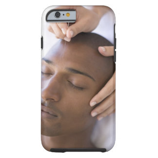 Acupuncture. Acupuncturist inserting a needle Tough iPhone 6 Case