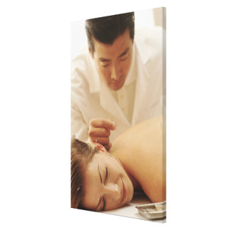 Acupuncturist putting needles in woman's back canvas print