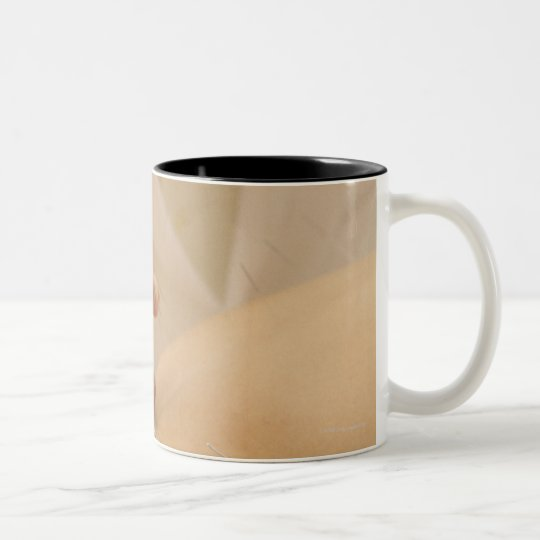 Acupuncturist putting needles in woman's back Two-Tone coffee mug