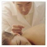 Acupuncturist que pone agujas en la mujer detrás tejas  cerámicas