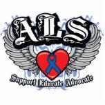 Alas del ALS Escultura Fotografica