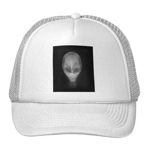Alien Skull X-ray Hats