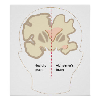 Alzheimer s disease brain Poster